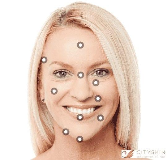 How long does dermal filler take to set in position? | Cityskin