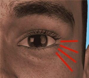 difficult crows feet injections