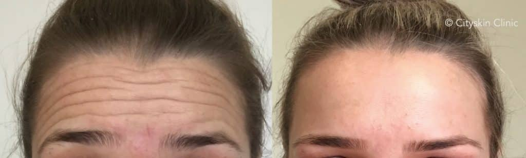 forehead line injections melbourne