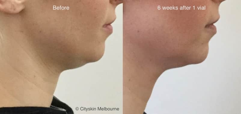 double chin injection before after pictures melbourne