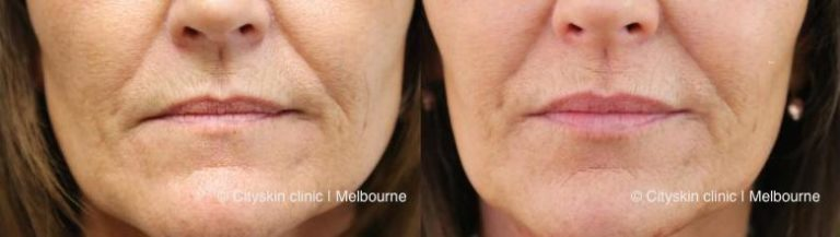 lip dermal fillers melbourne