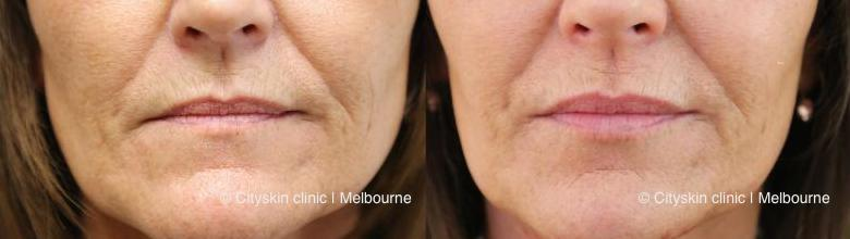 Melbourne lip enhancement