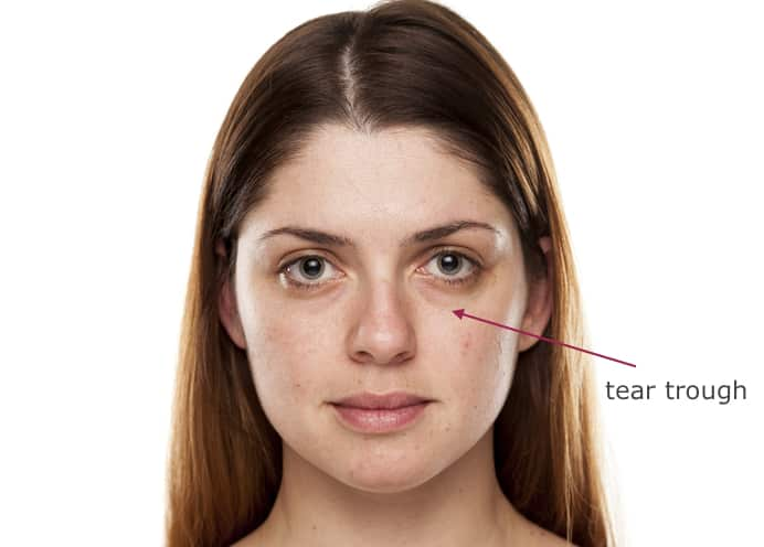 How To Naturally Treat Tear Trough