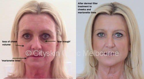 melbourne dermal fillers