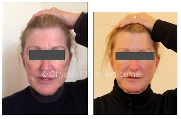 cheek dermal filler melbourne
