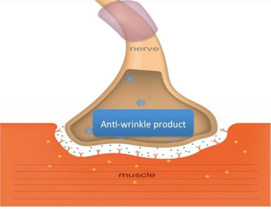 how do anti-wrinkle injections work?