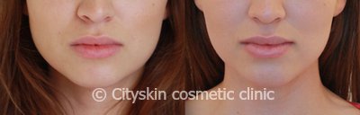 Facial slimming pictures Melbourne