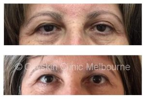 non surgical brow lift in melbourne