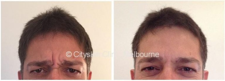 male frown line treatment melbourne