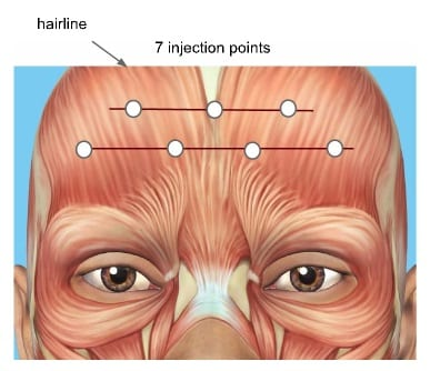 how to treat forehead lines