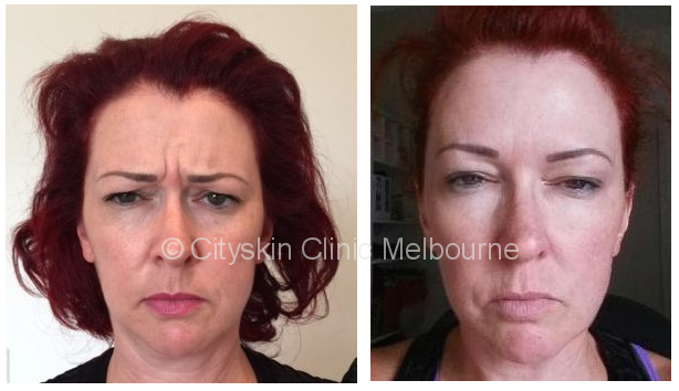 Frown line before after pictures