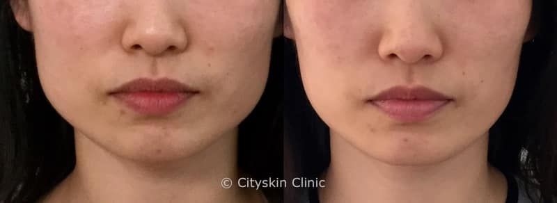 Facial slimming treatment | Cityskin Melbourne & Sydney ...