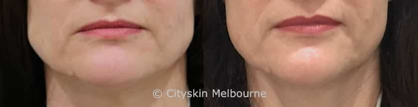 masseter injections melbourne