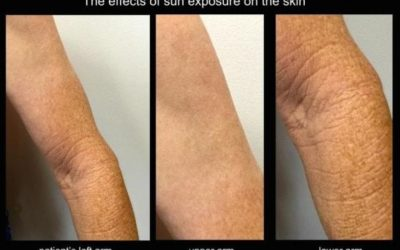 Long term effects of sun damage on the skin