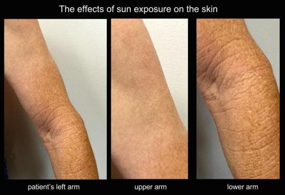 skin cancer clinic melbourne