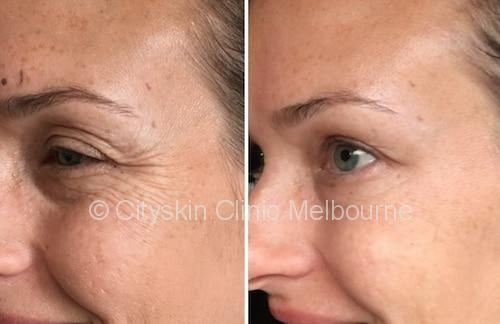 crows-feet-injections-melbourne-cost