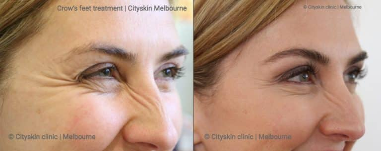 Melbourne crows feet treatment Cityskin before after photo