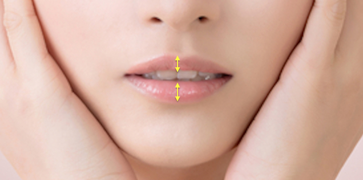 asian lip filler melbourne