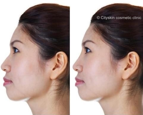 nose dermal fillers melbourne non surgical rhinoplasty