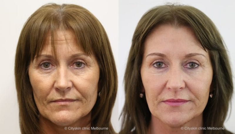 dermal filler full facial rejuventation melbourne