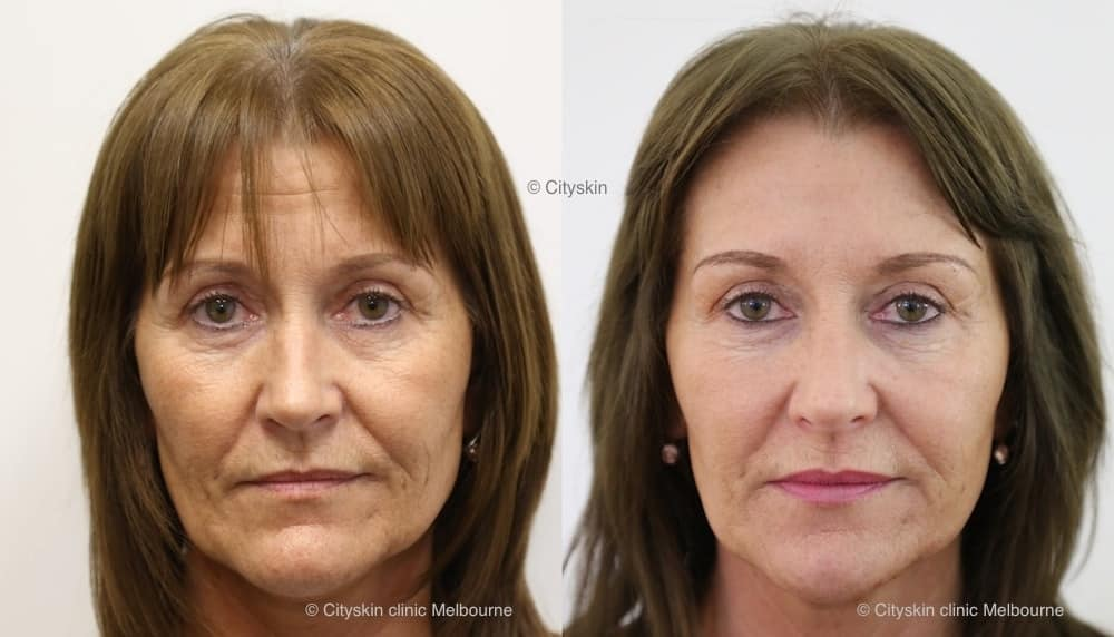 Non Surgical Facelift With Dermal Filler Cityskin