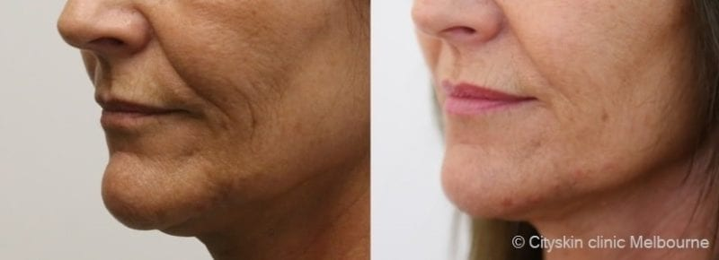 jowl dermal fillers melbourne