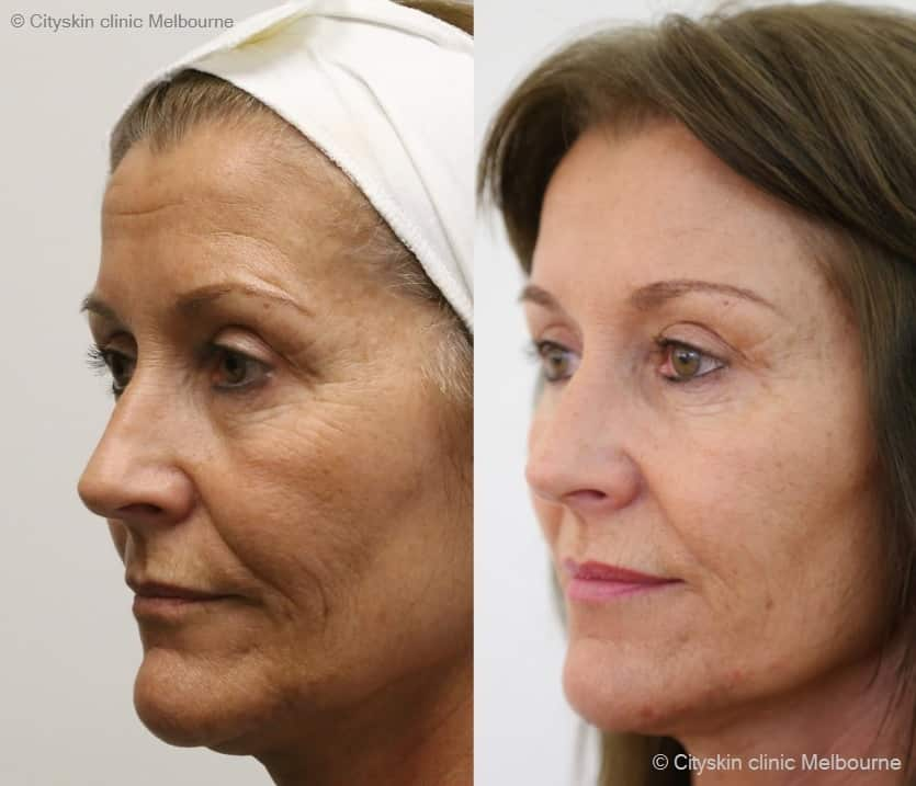 melbourne cheek dermal filler