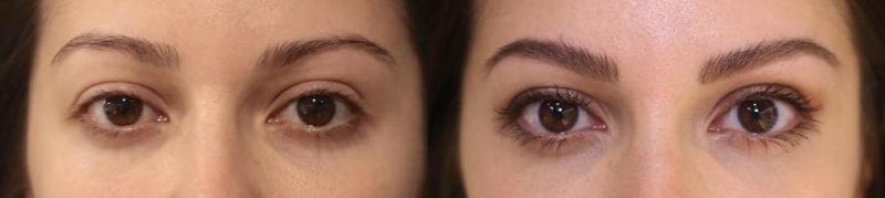 cityskin-brow-before-after-melbourne