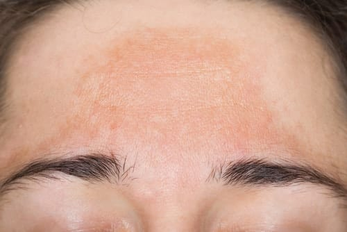 melasma treatment melbourne laser clinic