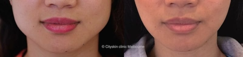 facial slimming injection perth