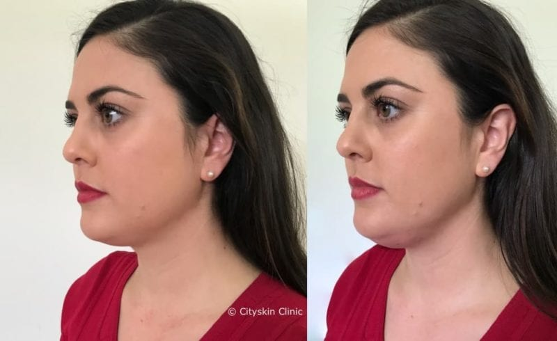 how much swelling after double chin injections
