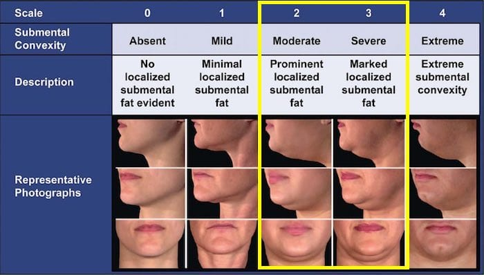 double chin treatment guide