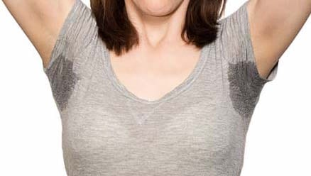 hyperhidrosis underarm sweating treatment melbourne