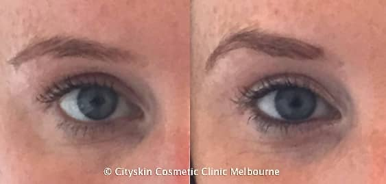 brow lift anti-wrinkle injections