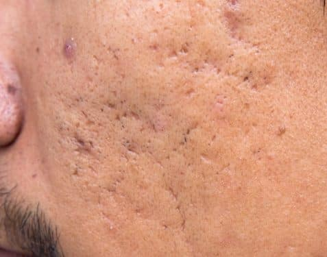 Acne scar treatment | A guide by Dr Jonathan Brown