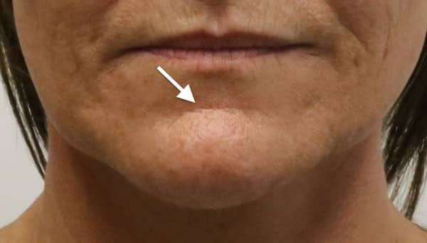 chin crease treatment melbourne