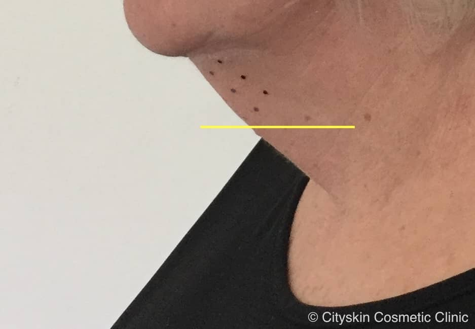 Double chin treatment – lessons learnt from 6 months of injecting