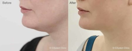 Permanent double chin treatment at Cityskin | Melbourne, Sydney & Adelaide