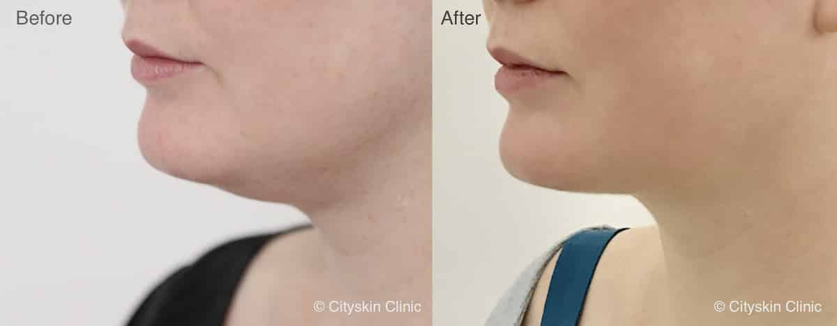 double chin treatment before afters