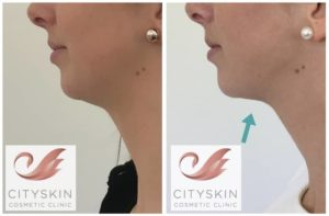 double chin injection before after photos