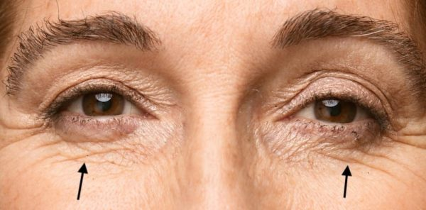 under eye line treatment