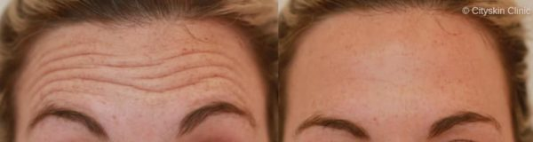 melbourne anti wrinkle injections