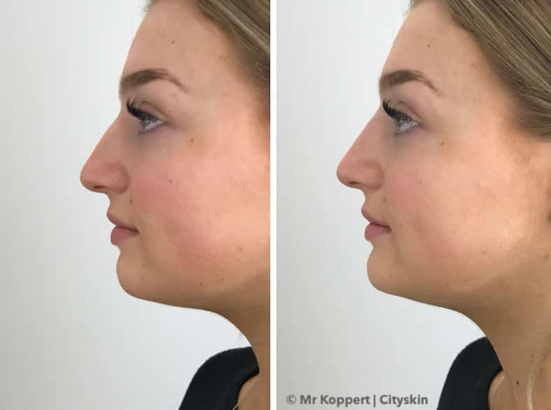 nose dermal filler before after melbourne sydney adelaide