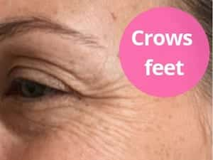 crows feet anti-wrinkle treatment