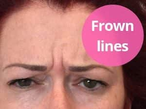 frown line anti wrinkle injections melbourne sydney adelaide australia