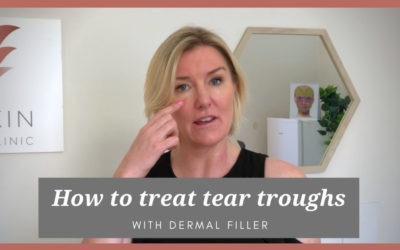 How to treat tear troughs with dermal filler | Bianca Quon from Cityskin