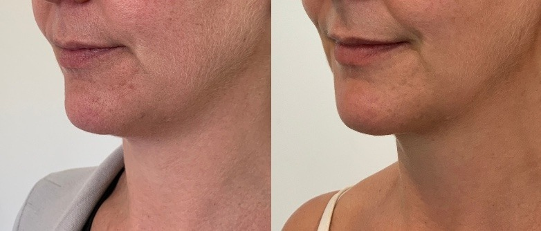 Double chin injections | From $600 per vial | Cityskin Melbourne
