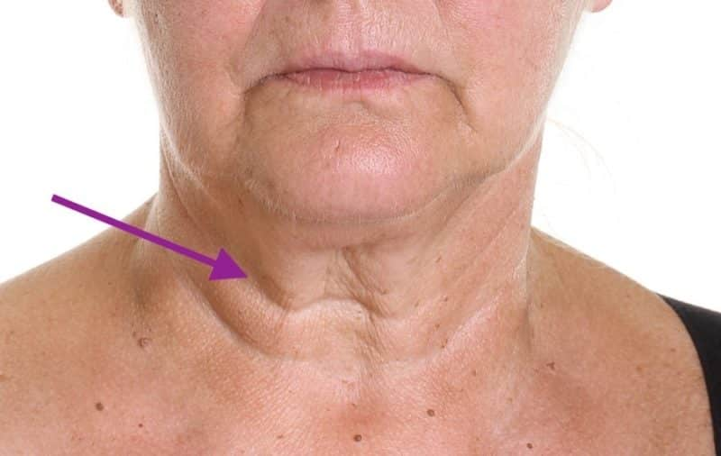 how to treat horizontal neck lines