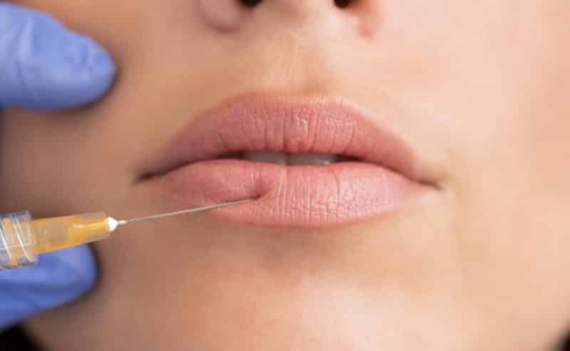 permanent lip filler removal