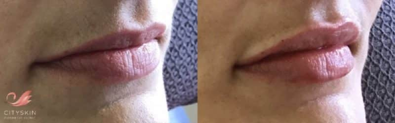 lip dermal filler before after